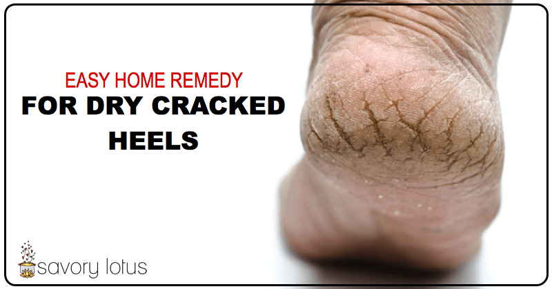 Easy Home Remedy for Dry Cracked Heels [www.savorylotus.com]
