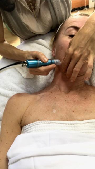 microdermabrasion - alternatives to botox